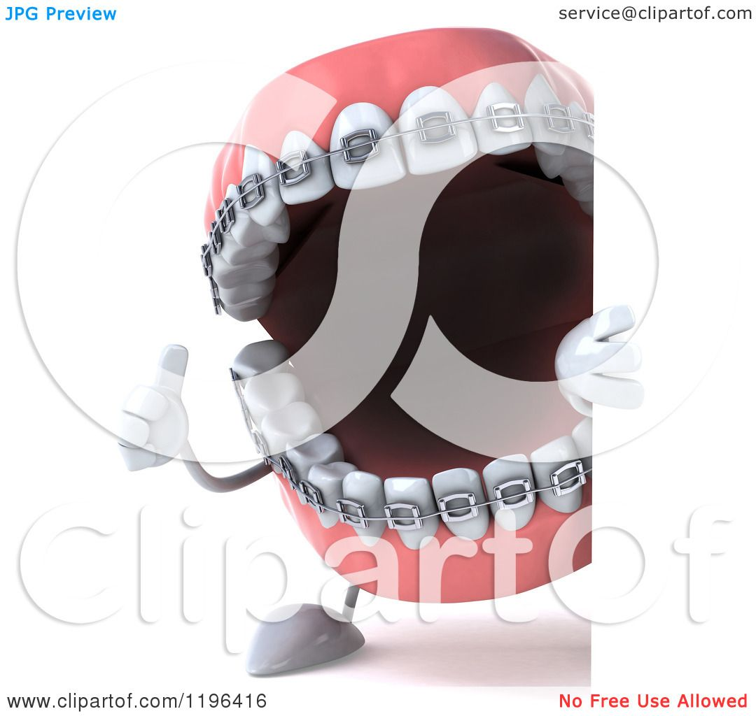 Cartoon of a 3d Metal Mouth Teeth Mascot with Braces, Looking ...