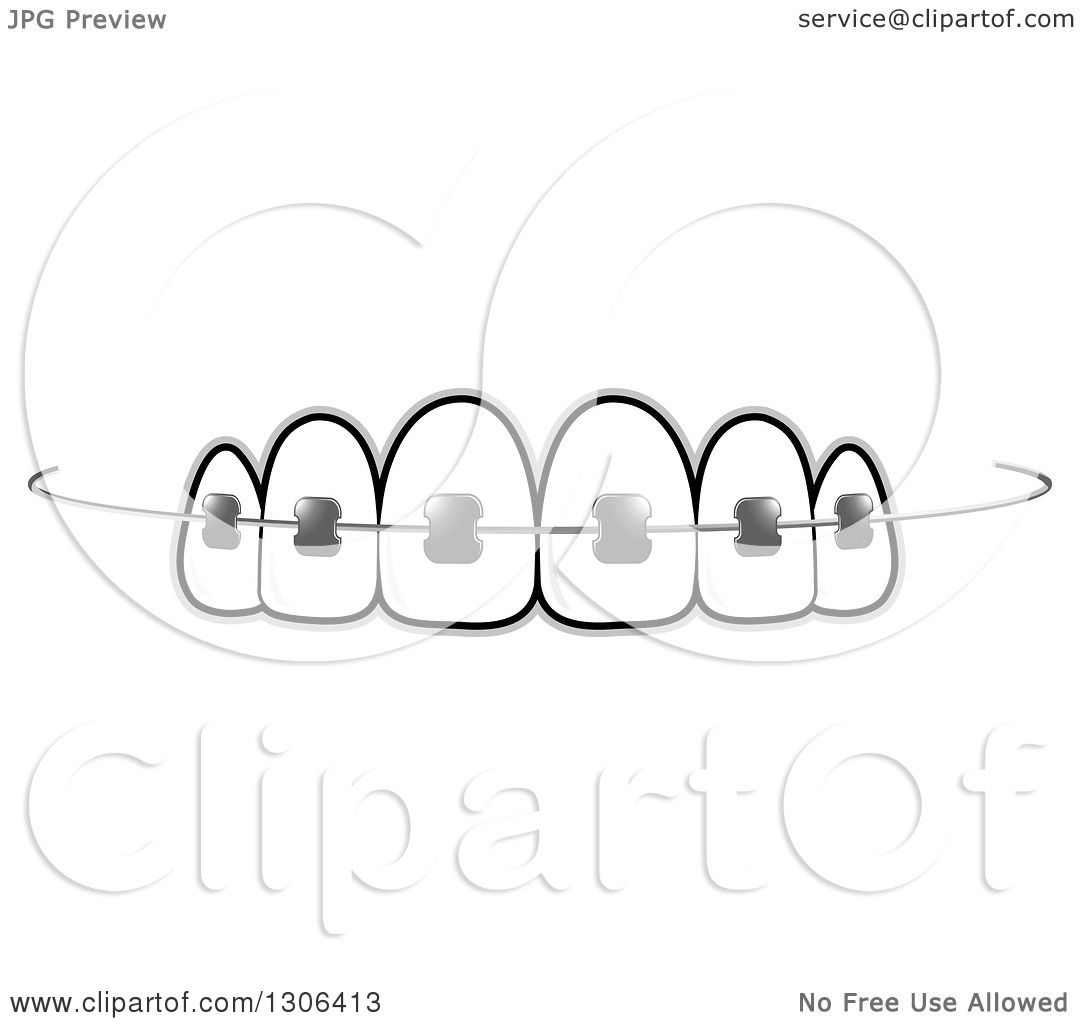 Brace Teeth Clipart Clipart of Teeth And Dental