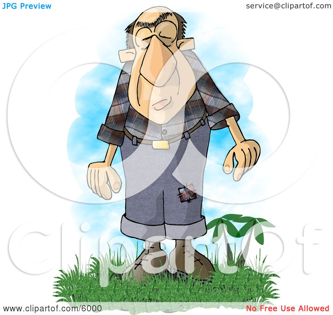 Giant Man With A Condition Known As Acromegaly Clipart
