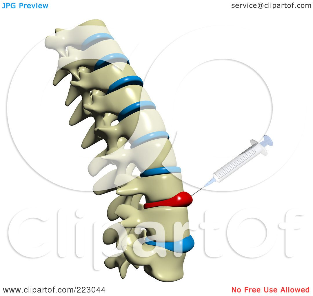 Royalty Free Rf Clipart Illustration Of A 3d Spine With