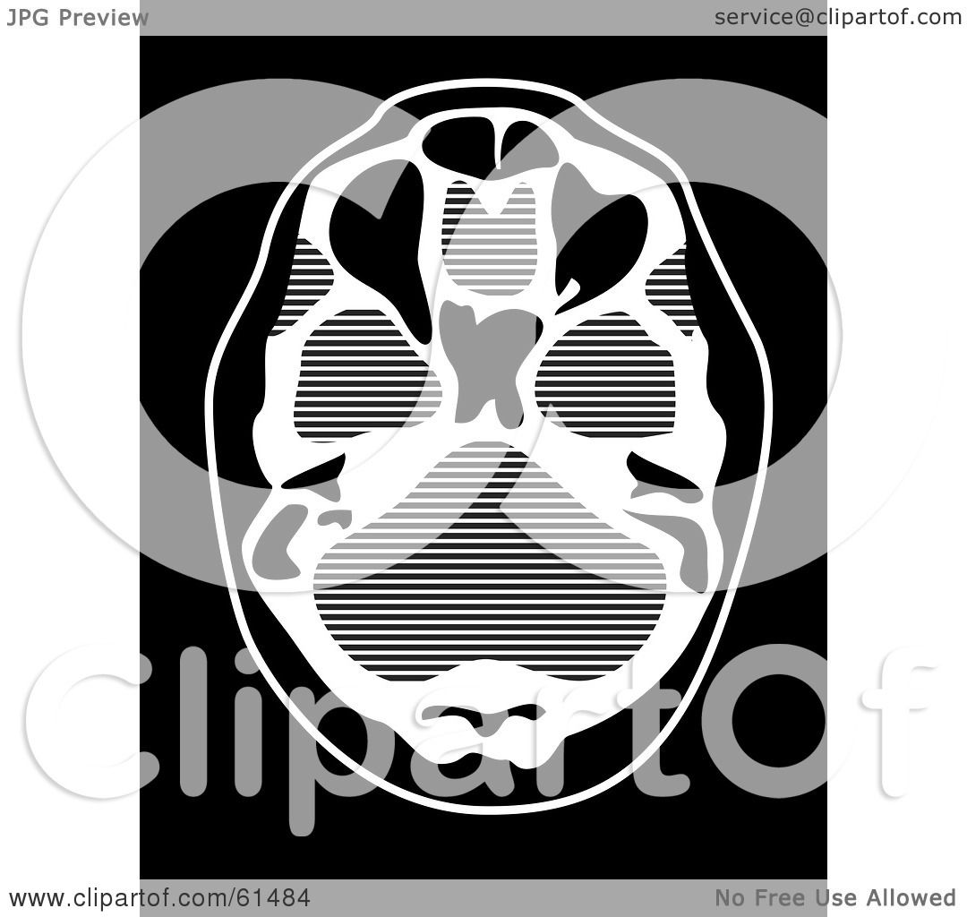 Royalty-free (RF) Clipart Illustration Of A Black And