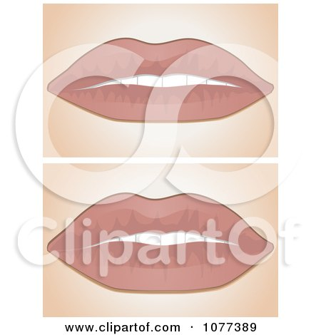 Clipart Before And After Lip Filler Scenes - Royalty Free Vector Illustration by elaineitalia