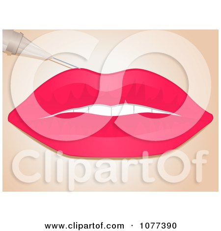 Clipart Needle Injecting Collagen Filler Into A Womans Lips - Royalty Free Vector Illustration by elaineitalia