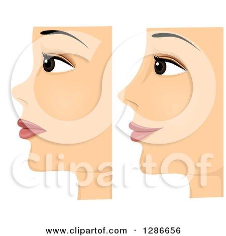 traitement contre l'acné de grossesse urinaire