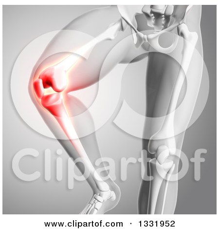 Clipart of a 3d Anatomical Human Male Skeleton with Glowing Knee Pain, on Gray - Royalty Free Illustration by KJ Pargeter