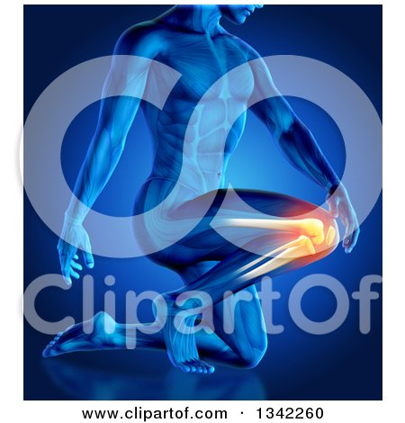 Clipart of a 3d Anatomical Man Kneeling with Glowing Knee Pain on Blue - Royalty Free Illustration by KJ Pargeter