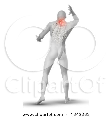 Clipart of a 3d Rear View of a Medical Anatomical Male Reaching Back, with Visible Paintful Neck Vertebrae and Upper Skeleton on White - Royalty Free Illustration by KJ Pargeter
