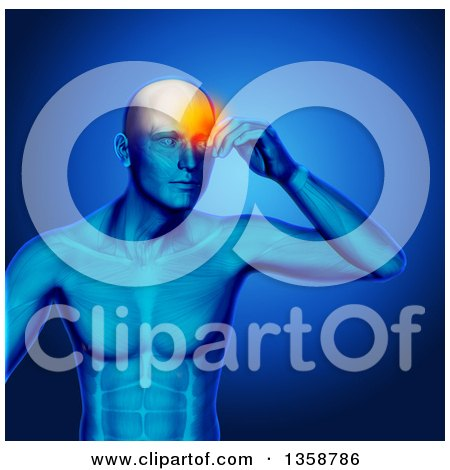 Clipart of a 3d Xray Anatomical Man with Visible Muscles and Glowing Head Pain, over Blue - Royalty Free Illustration by KJ Pargeter