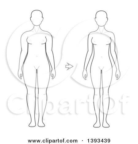Clipart of a Lineart Drawing of a Woman Shown Before and After Weight Loss - Royalty Free Vector Illustration by vectorace