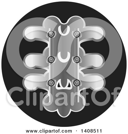Clipart of a Medical Spine with Screws - Royalty Free Vector Illustration by Lal Perera