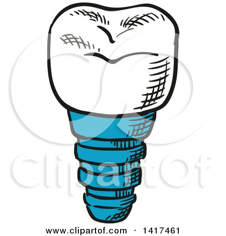 Clipart of a Tooth Implant - Royalty Free Vector Illustration by Vector Tradition SM