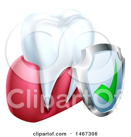 Clipart of a 3d Tooth and Protective Dental Shield - Royalty Free Vector Illustration by AtStockIllustration