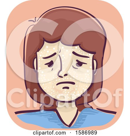 Clipart of a Sad Girl with Scabs on Her Face - Royalty Free Vector Illustration by BNP Design Studio