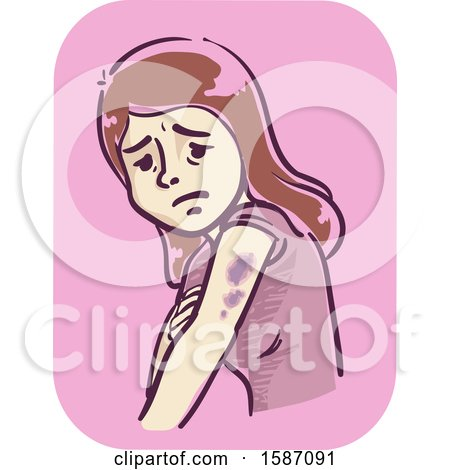 Clipart of a Woman with Bruises on Her Arms - Royalty Free Vector Illustration by BNP Design Studio