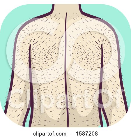 Clipart of a Man with Excessive Hairy Back and Arms, Hypertrichosis Health Problem - Royalty Free Vector Illustration by BNP Design Studio