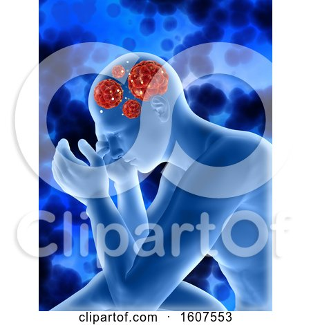 Clipart of a 3D Render of a Medical Background with Male Figure Showing Virus Cells in Head - Royalty Free Illustration by KJ Pargeter