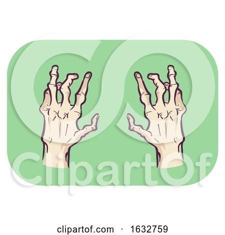 Hands Symptom Both Side Affected Illustration by BNP Design Studio