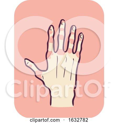 Hand Symptom Joint Redness Illustration by BNP Design Studio