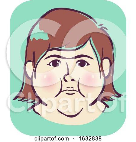 Girl Symptom Puffy Round Face Illustration by BNP Design Studio