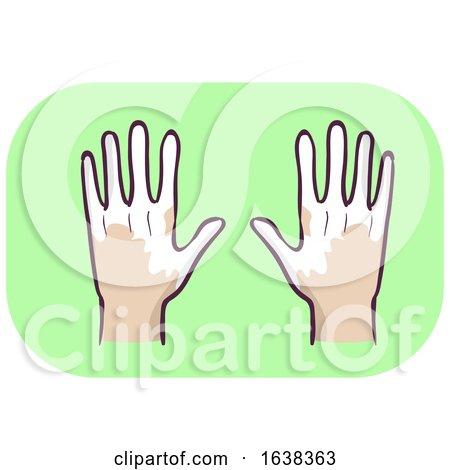 Hands Symptom Loss of Pigment in Skin Illustration by BNP Design Studio
