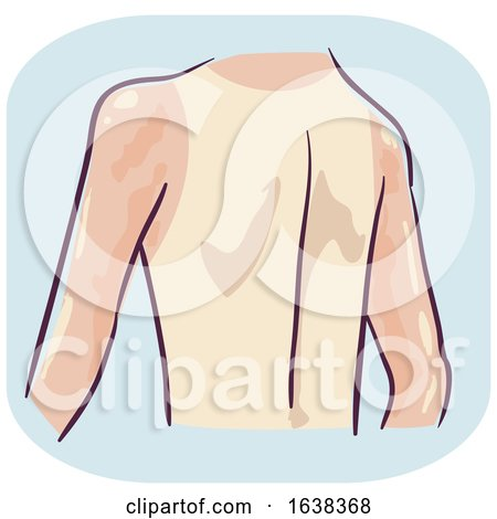 Back Symptom Reddish Undertone Skin Illustration by BNP Design Studio