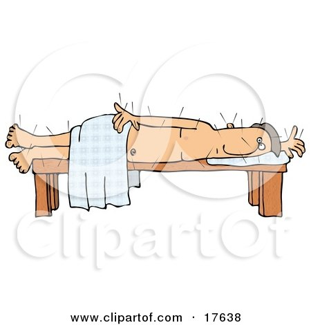 Male Caucasian Patient Poked All Over With Acupuncture Needles Lying On His Side On A Table While Draped In A Sheet Clipart Illustration