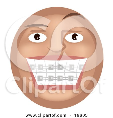Clipart Illustration of a Metal Mouth Tan Smiley Face Showing Its Braces On