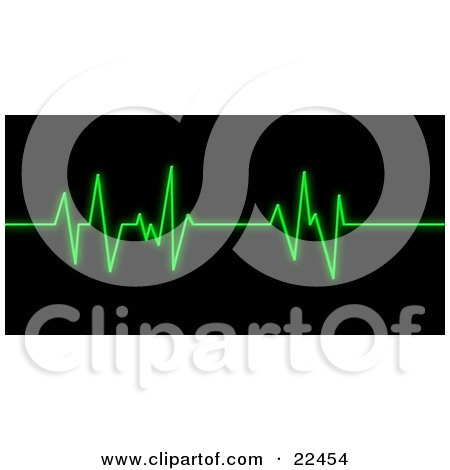 Clipart Illustration of a Bright Green Heart Rate Monitor Keeping Track Of A Patient's Heart Beat by KJ Pargeter