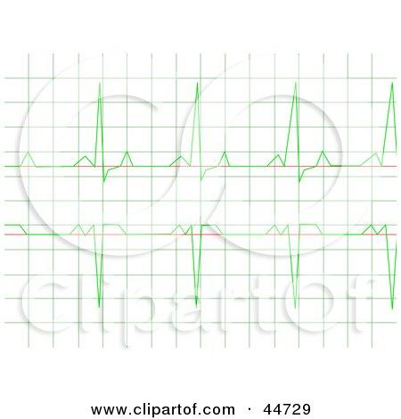 Royalty-Free (RF) Clipart Illustration of a Regular Green Heart Rhythm Electrocardiogram ECG Graph by oboy