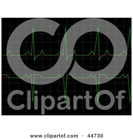 Royalty-Free (RF) Clipart Illustration of a Regular Black And Green Heart Rhythm Electrocardiogram ECG Graph by oboy