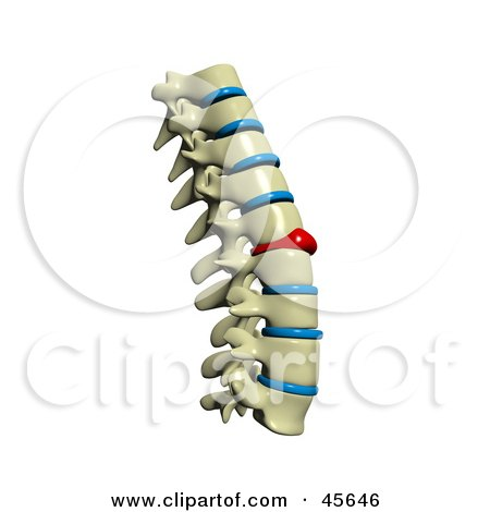 Royalty-free (RF) Clipart Illustration of a Human Spine With A Red Injured Spinal Disc by Michael Schmeling