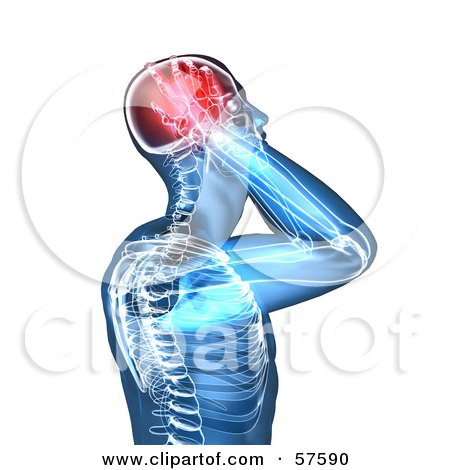 Royalty-Free (RF) Clipart Illustration of a 3d Blue Body Character With A Migraine - Version 6 by Julos