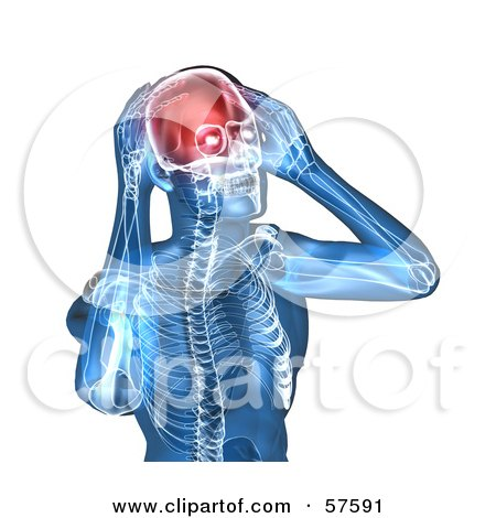 Royalty-Free (RF) Clipart Illustration of a 3d Blue Body Character With A Migraine - Version 5 by Julos