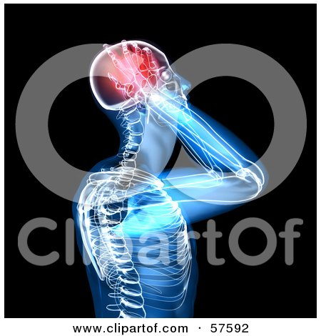 Royalty-Free (RF) Clipart Illustration of a 3d Blue Body Character With A Migraine - Version 2 by Julos