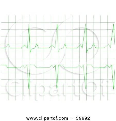 Royalty-Free (RF) Clipart Illustration of a Green Heart Rhythm Electrocardiogram ECG Graph by oboy