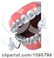 Clipart 3d Metal Mouth Teeth Character With Braces And A Sign 2 Royalty Free CGI Illustration
