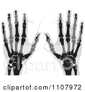 Clipart Xrays Of Human Hands 2 Royalty Free Vector Illustration by Lal Perera