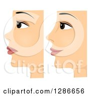 Clipart Of A Composite Of Profiled Before And After On A Woman With Rhinoplasty Nose Surgery Royalty Free Vector Illustration by BNP Design Studio