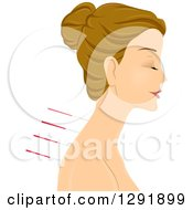 Clipart Of A Relaxed Caucasian Woman With Acupuncture Needles In Profile Royalty Free Vector Illustration