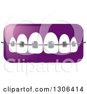 Clipart Of A Gradient Purple Icon Of Teeth And Dental Braces Royalty Free Vector Illustration by Lal Perera