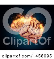 Clipart Of A 3d Burning Human Brain Royalty Free Illustration