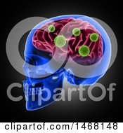 Clipart Of A 3d Profiled Human Skull With Virus Cells Attacking The Brain On Black Royalty Free Illustration