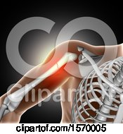 Clipart Of A 3d Xray With Glowing Broken Shoulder Bone On Gray Royalty Free Illustration