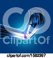 Poster, Art Print Of 3d Xray Of A Bent Wrist