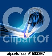 Clipart Of A 3d Xray Of A Bent Wrist Royalty Free Illustration