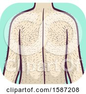 Clipart Of A Man With Excessive Hairy Back And Arms Hypertrichosis Health Problem Royalty Free Vector Illustration