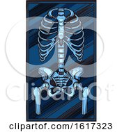 November 20th, 2018: Skeleton Xray by Vector Tradition SM