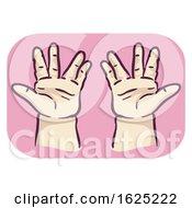 Hands Symptom Trident Hand Short Finger