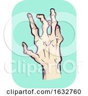 Poster, Art Print Of Hands Symptom Joint Deformity Illustration