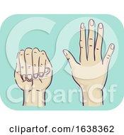 Poster, Art Print Of Hands Symptom Disproportion Long Fingers